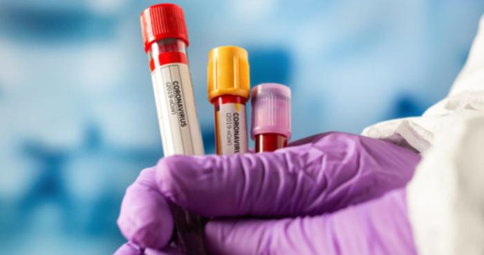 Статистика коронавірусу в Острозі станом на 1 серпня